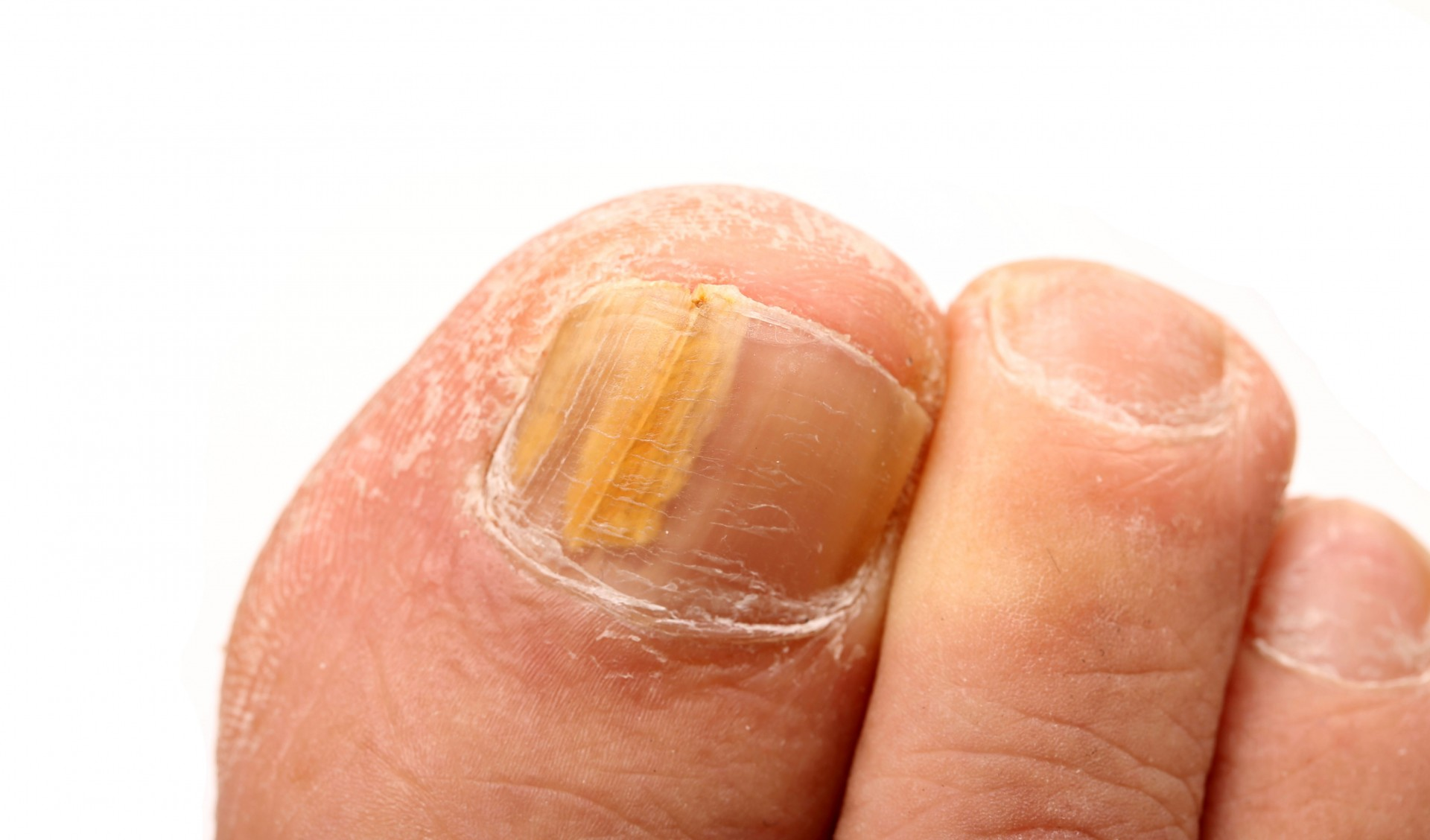 fungal nails-web.jpg