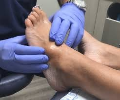 Funny Lumps on Your Feet? All You Need to Know About ...