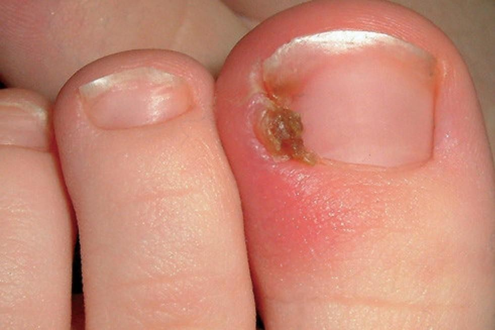 Ingrown Nail.jpg